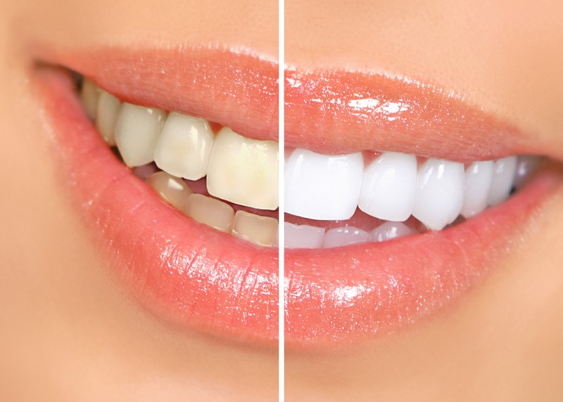 Teeth Whitening  Union Bridge, MD